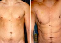 chirurgia estetica ptosi addominale