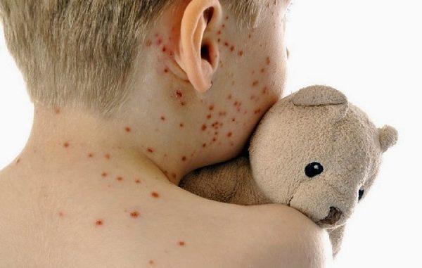 Allarme morbillo in Italia, diminuisce il numero dei vaccini adulti a rischio